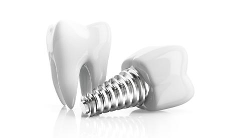 Implant dentaire à la clinique dentaire Ste-Rose