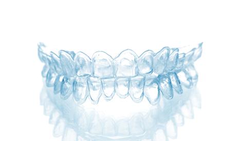 Blanchiment dentaire offert à la clinique dentaire Ste-Rose
